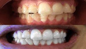Tanden bleken in Amersfoort voor een goede prijs